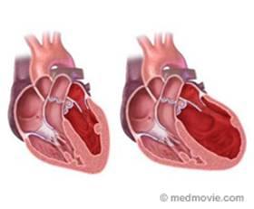 Heart Failure Image