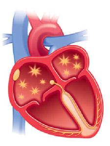 arrhythmia image