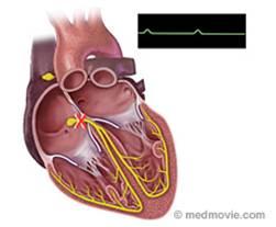 heart block image
