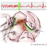 Cardioversion Part I