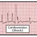 Cardioversion Part II