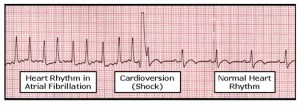Cardioversion ECG